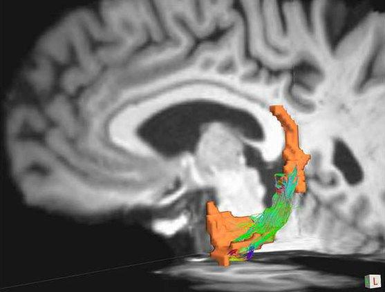 Parkinsons brain